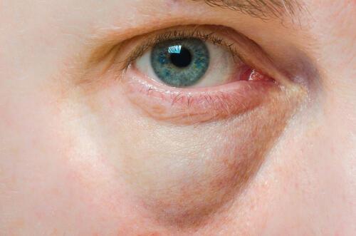 目の下のたるみを取る方法!眼輪筋を鍛えれば改善する。 | 身嗜み ...