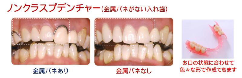 目立たない部分入れ歯 ノンクラスプデンチャー | イーストブログ