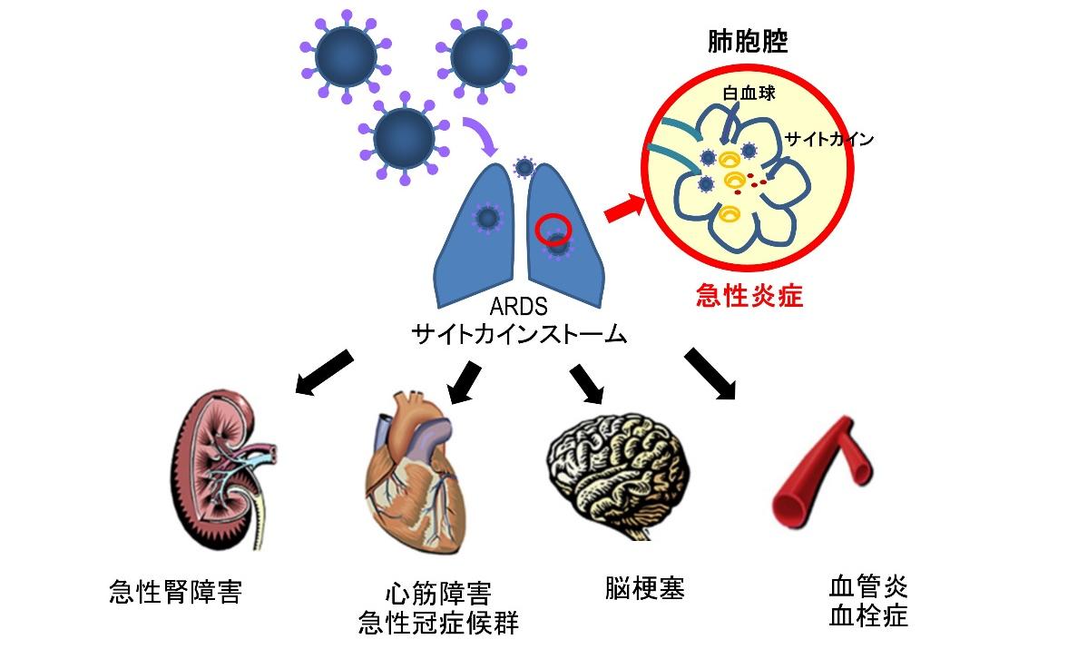 新型コロナウイルス感染症(COVID-19)と血栓症、心臓病との関連 ...