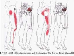 あなたの腰痛はどのタイプ?>トリガーポイントが作り出す腰痛の基本9 ...