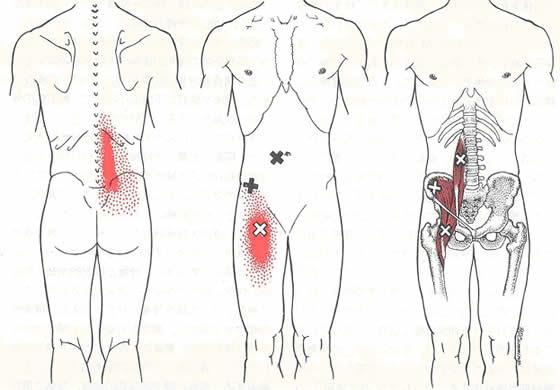 トリガーポイントが原因で発生する痛みやシビレの代表例 | 世田谷 ...
