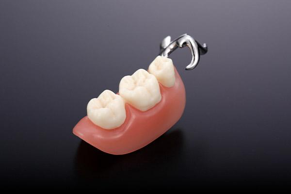合わない入れ歯が「たった1日」で噛める入れ歯に!|てんくも歯科医院 ...