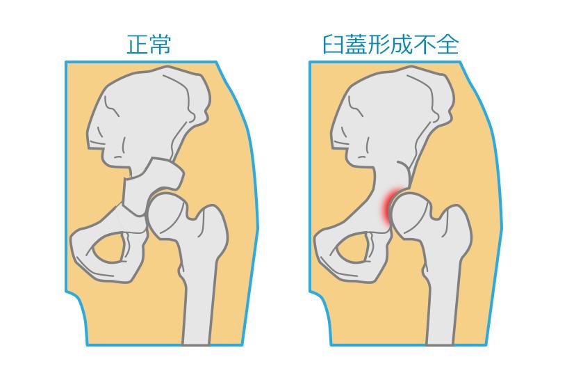 中高年に多い股関節痛。その痛みは臼蓋形成不全かもしれません | OG ...