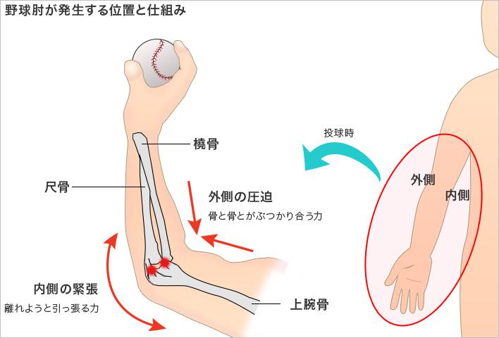 野球肘 (やきゅうひじ) | 社会福祉法人 恩賜財団 済生会