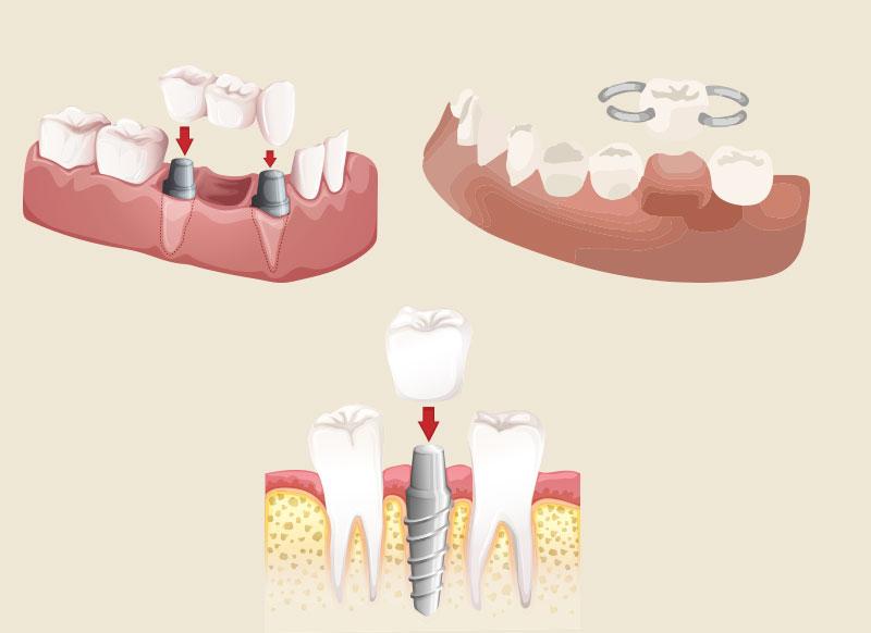 インプラントのメリット・デメリット – ブリッジ・入れ歯との違い