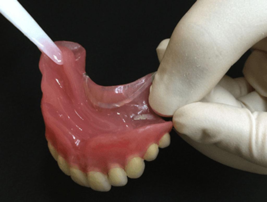 歯科のお仕事完全マニュアル 第10章 失われた歯を補う治療 STEP8 ...