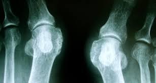 外反母趾の手術と、自分でできる足の体操と痛みの緩和法 | メディカル ...