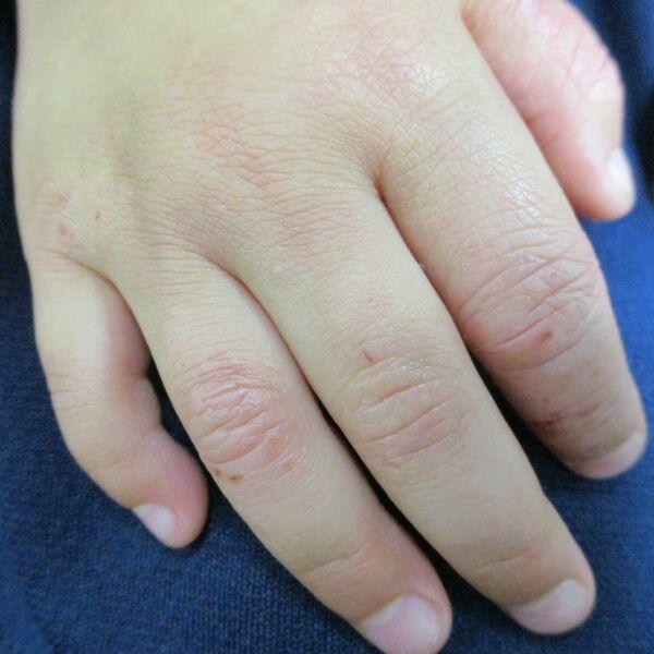 肌弱い人、気を付けて」 新型コロナ予防のはずが… 消毒で手荒れ、悪化 ...
