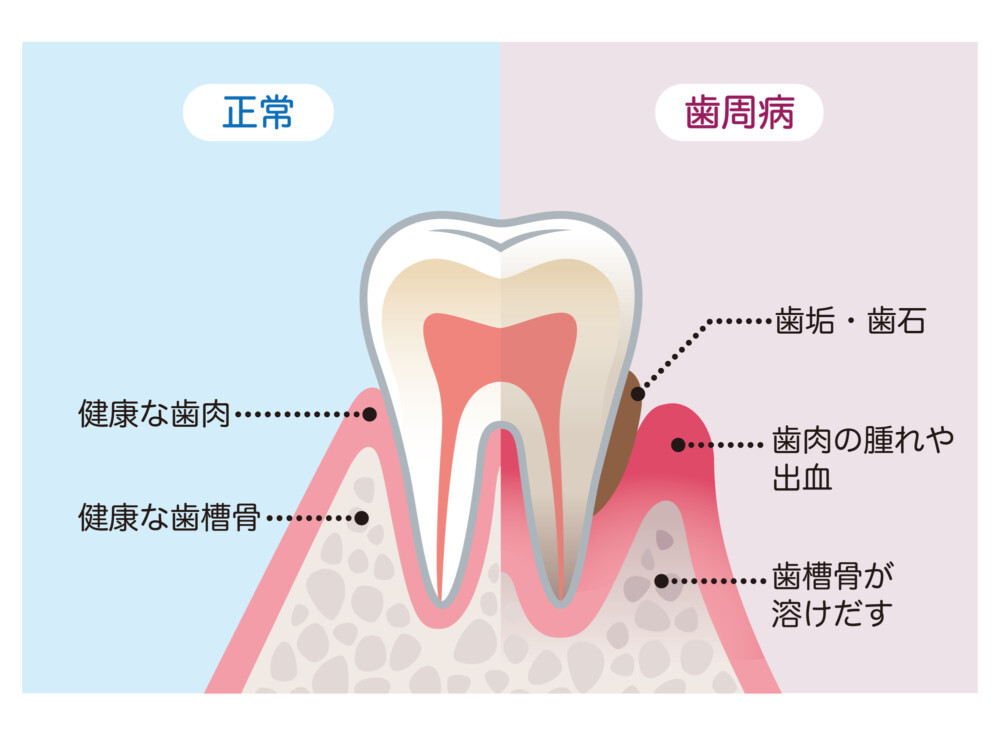 歯周病(歯槽膿漏)治療 | あきる野市の年中無休の歯医者 きらら歯科