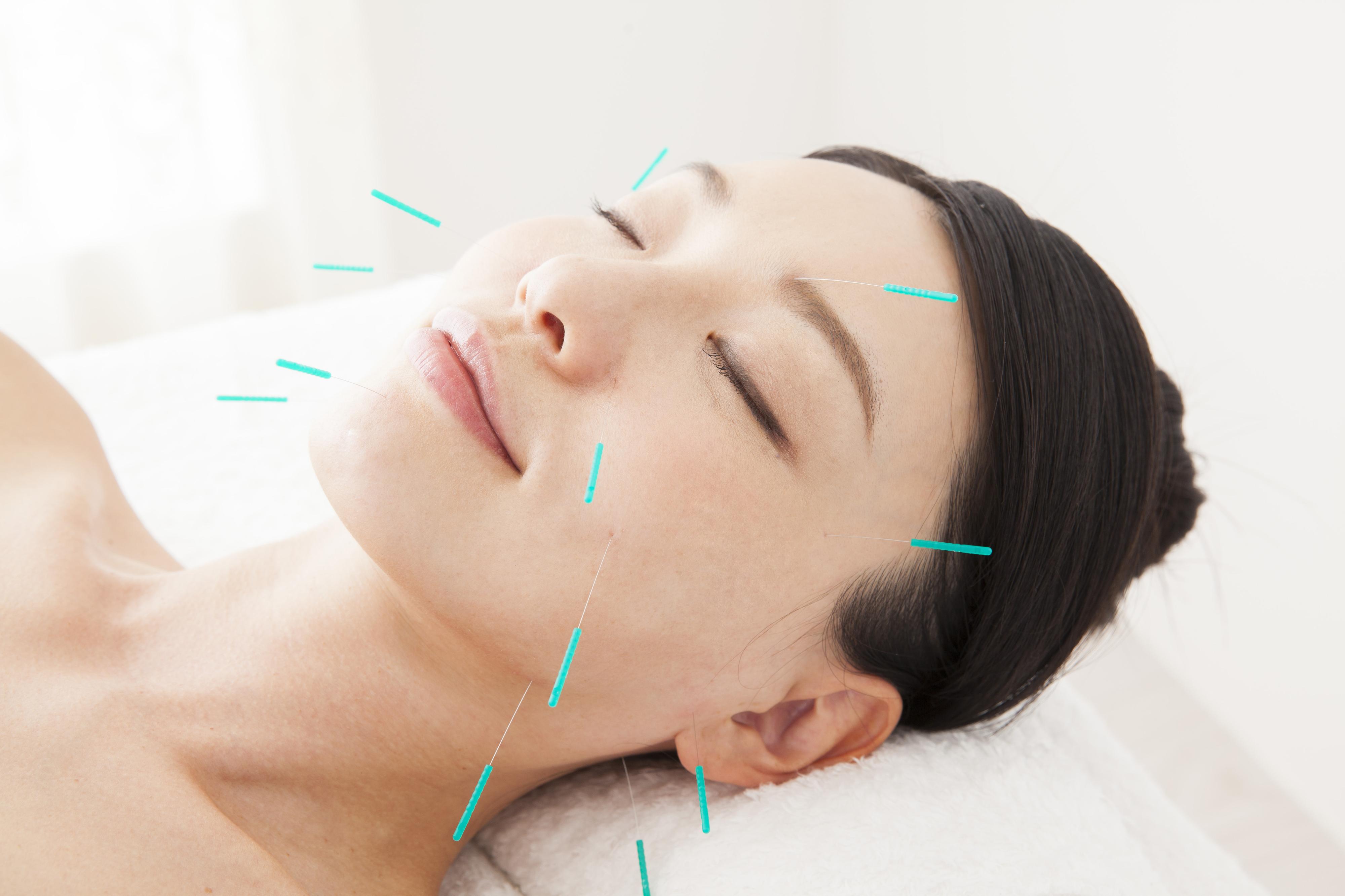 アンチエイジング専門の美容鍼|公式【岡崎市のいお鍼灸接骨院】