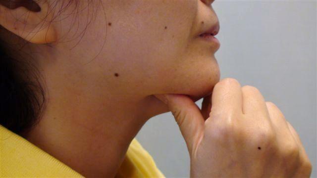 食いしばり」「噛みしめ」と「過緊張性発声」の関係 : 喉ニュース