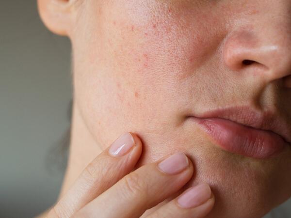 乾燥肌になると、なぜかゆい?菅沼薫流、最強乾燥対策 | ハルメク美と健康