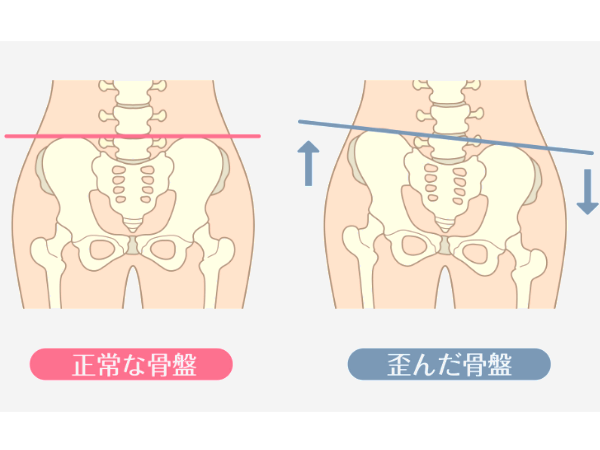 ストレッチで骨盤矯正できる?その方法や歪み原因は? | ハルメクWEB