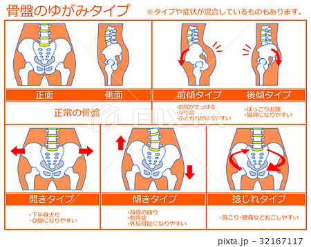 骨盤のゆがみ・分類図4(オレンジ色・説明あり)のイラスト素材 ...