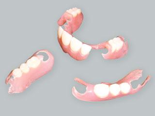 ノンクラスプデンチャー - きの歯科医院homepage