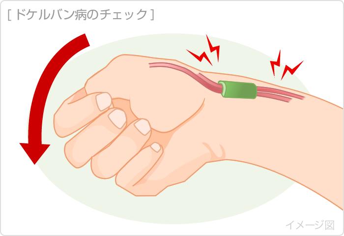腱鞘炎の予防|くすりと健康の情報局