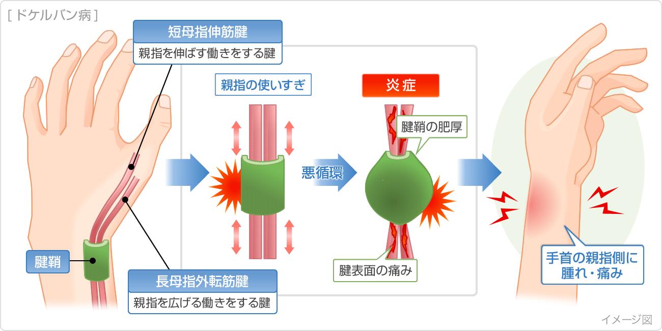 腱鞘炎の症状・原因|くすりと健康の情報局