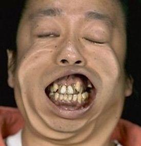 niziuあやか歯茎が変!ガミースマイルがヤバい!