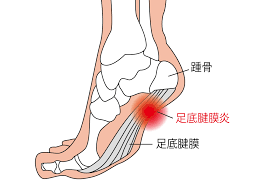 足底筋膜炎とは。チェック方法、原因、治し方、改善トレーニングを紹介 ...