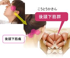 後頭下筋群と眼精疲労と慢性頭痛 | 眼精疲労治療 難聴めまい肩こりは ...