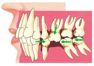 抜けたままにしておいたら歯が傾いた。抜きっぱなしの8つの障害 ...