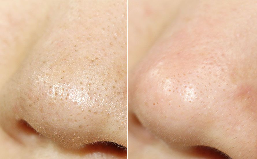 医学博士監修の自宅ケア】鼻の黒ずみや頬の毛穴が1ヶ月で毛穴レスに ...