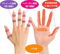 ヘバーデン結節のテーピング療法】市販の指サポーターで改善 指の関節 ...