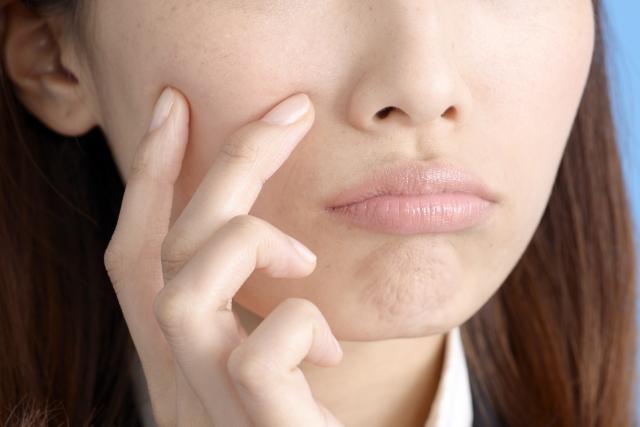 冬に老ける原因「顔冷え」を見逃していませんか? | ISDG 医食同源 ...
