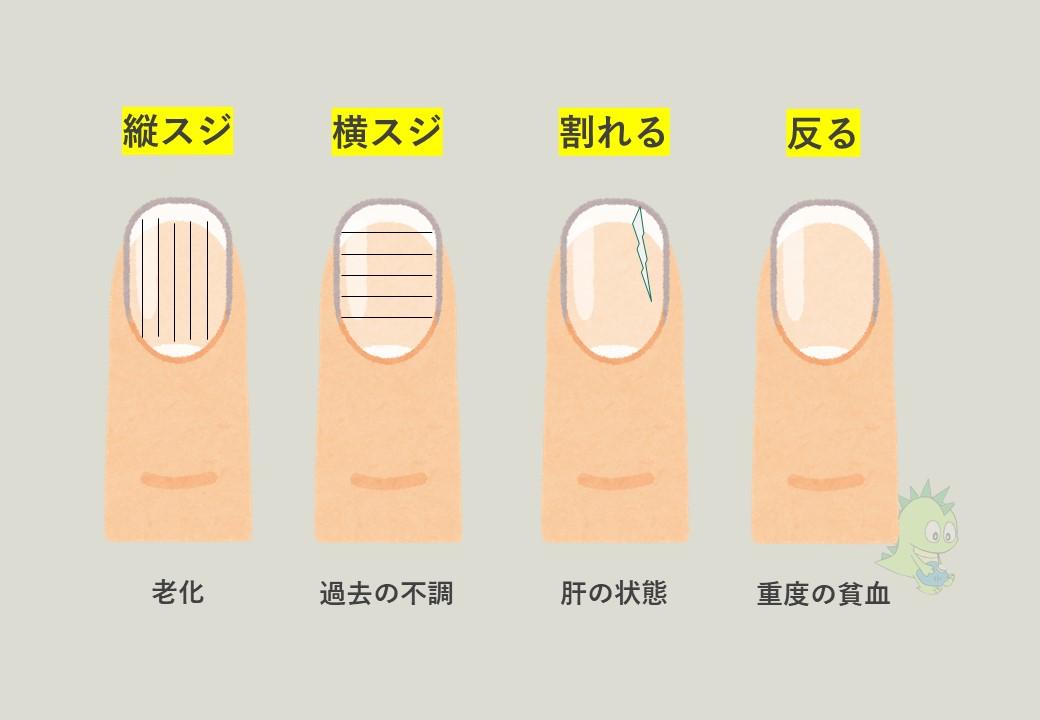 2020年6月最新】「爪」で診る健康状態!東洋医学で見る体調管理術 ...