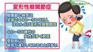 足の付け根・股関節の痛み 変形性股関節症の原因と症状とは? | NHK ...
