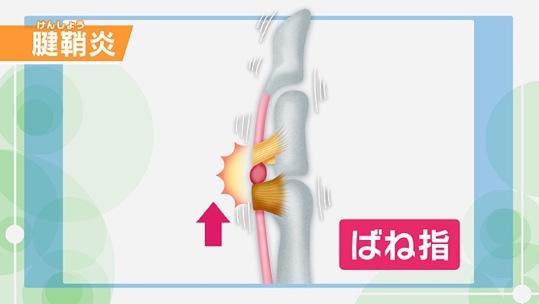 指が痛い」腱鞘炎とは?症状や種類、セルフチェック法 | NHK健康チャンネル