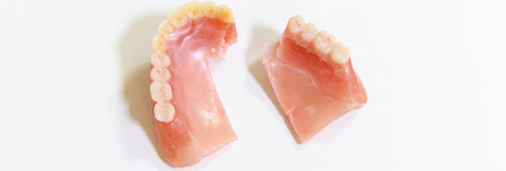 船堀で入れ歯調整のご相談は│ふくら歯科医院