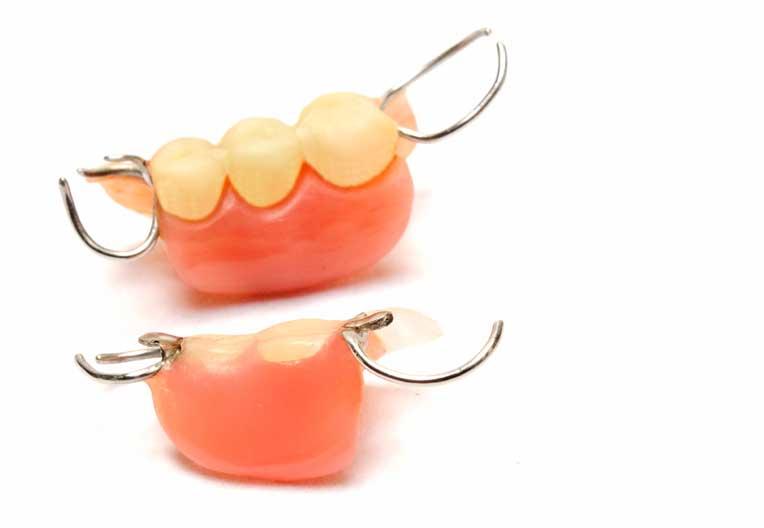 入れ歯 | 武蔵小杉まつ歯科クリニック