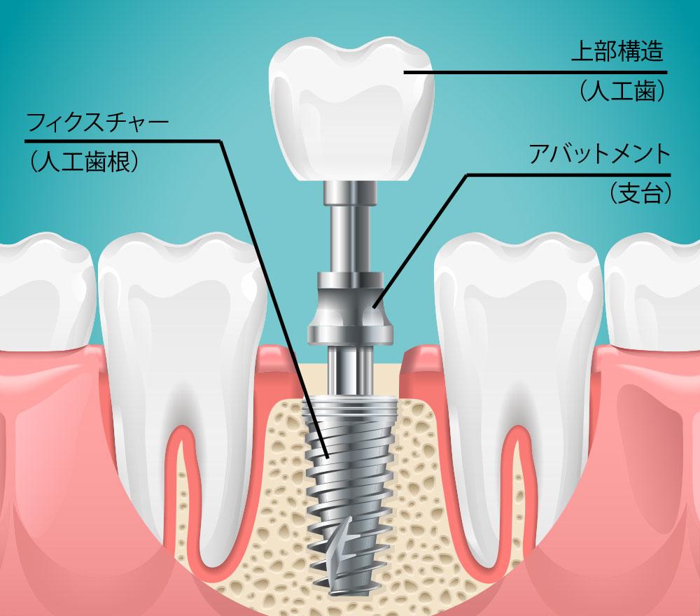 インプラント治療|能代でインプラント治療を行なうならよつじ歯科医院