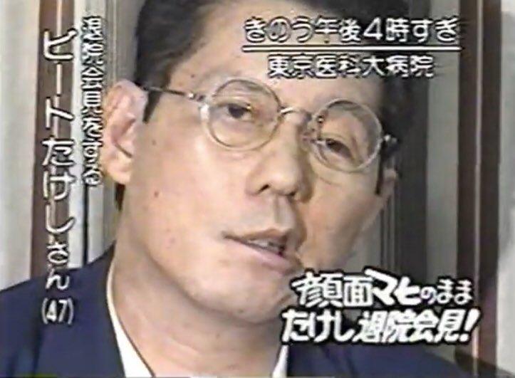 "Hopegenki on Twitter: ""1994-1995年のビートたけし 事故直前、退院 ..."