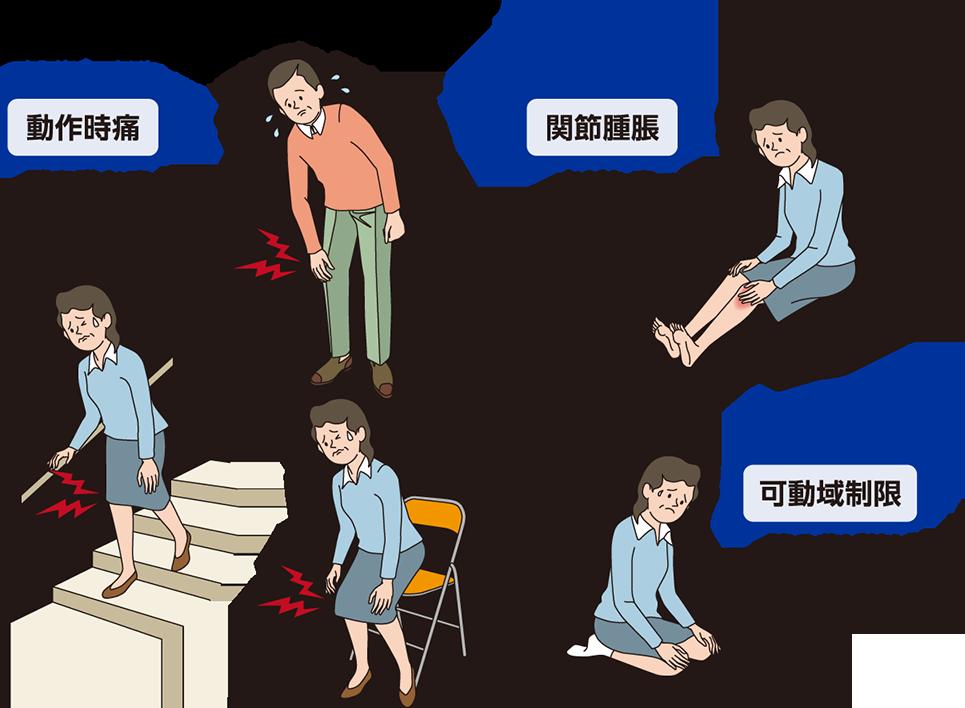 変形性膝関節症の症状|よくわかるほねとひざ.com