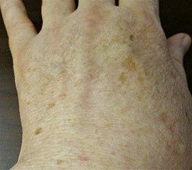 老人性色素斑 - Wikipedia