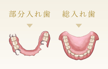 義歯・入れ歯(部分入れ歯・総入れ歯)   宝塚ライフ歯科・矯正歯科 ...