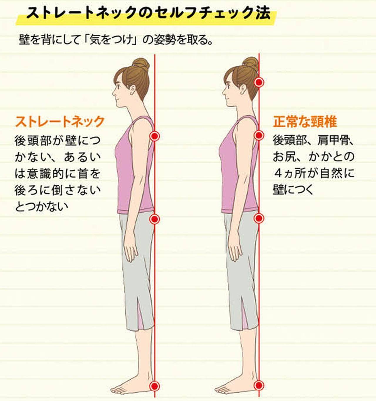 ストレートネックの治し方】首や肩の痛みは「スマホ首」が原因だった ...