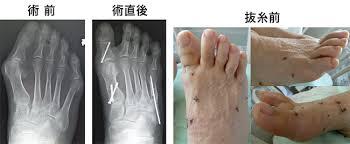 整形外科 - 前足部変形(外反母趾や足趾変形)に対する手術方針|千葉 ...