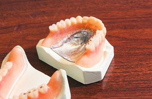 費用に応じた入れ歯の種類と選び方 | 入れ歯ならプライベート歯科横濱 ...