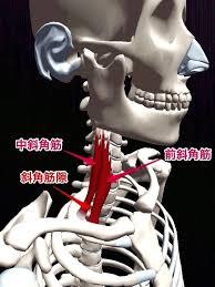 斜角筋症候群 - 【三軒茶屋駅】手足のしびれ・神経痛ならアールカイロ ...