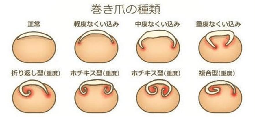陥入爪・巻き爪(手術、ワイヤー矯正)巻き爪や陥入爪の原因を知り ...