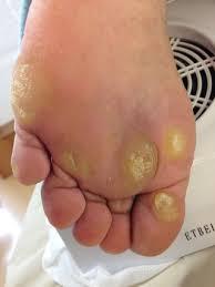 外反母趾治療沖縄,タコ,ウオノメ,浮き指,腰痛,ヒザ痛,足裏整体 ...