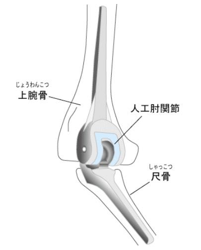 人工肘関節|人工関節の広場 -もう一度歩いて行きたい場所がある-