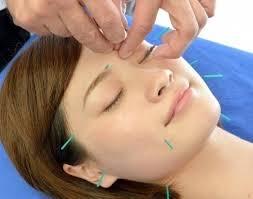 美容鍼+3D特殊電療施術 - JR八王子駅で鍼灸・整骨の施術なら、からだ ...