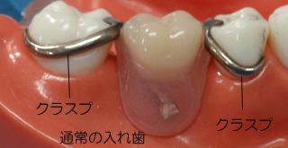 審美的な入れ歯 ノンクラスプの説明