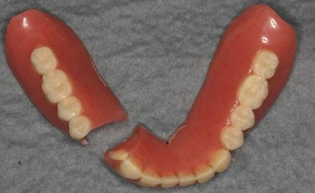 入れ歯が壊れた 岩手医科大学 歯科補綴学講座 有床義歯補綴学分野