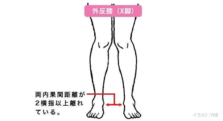 O脚いろいろ、O脚の矯正 | よみもの.com | 誠文堂新光社
