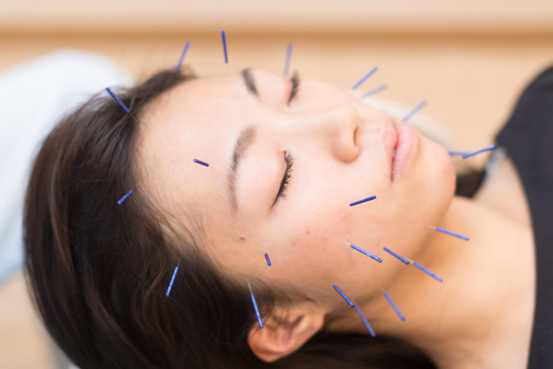 上板橋で効果的な美容鍼でリフトアップならSUN鍼灸整骨院